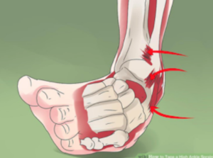 relief chiropractic health clinic in Cambridge ankle sprain